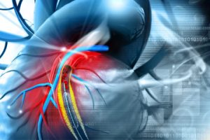 Ist medizinisches Marihuana sicher für Menschen mit Herz-Stents?